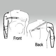 Shoulder Disarticulation Harness, SDH-200